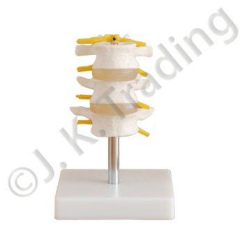 3 Piece Lumbar Model or Vertebrae Model