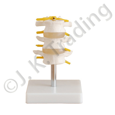 3 Piece Lumbar Model or Vertebrae Model